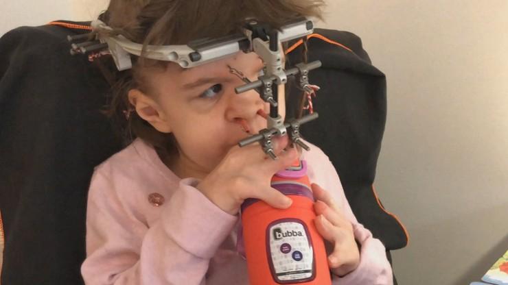 W ciągu kilku godzin zebrano ponad 400 tys. zł na operację Mai. Aparat mógł wrosnąć jej w głowę