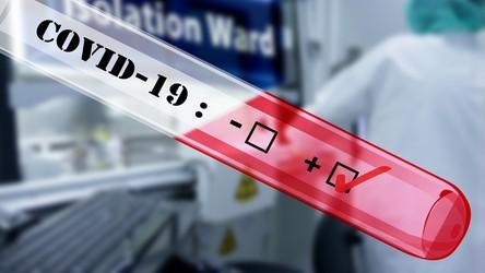 Wykrywamy tylko 6% infekcji CoVID-19. Chorych może być już 30 milionów
